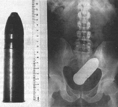 Une balle de fusil dans le rectum