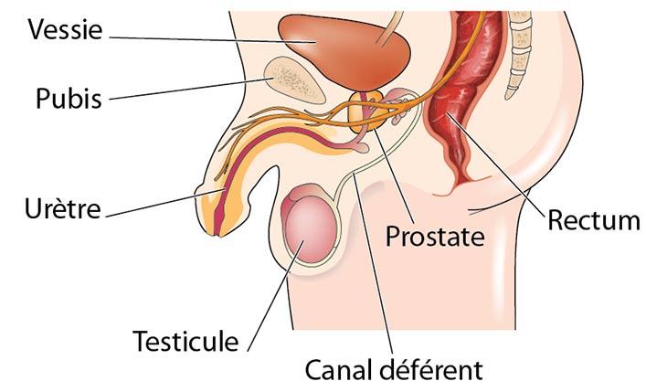 schéma prostate