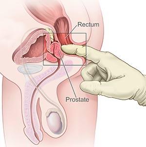 stimulation annale prostate